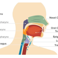 001-labextrade.com-stages-throat-cancer-