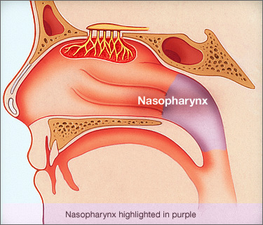 001-labextrade.com-stages-throat-cancer-nasopharyngeal