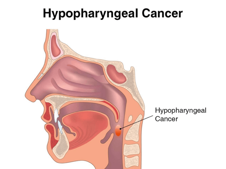 001-labextrade.com-stages-throat-hypopharyngeal-cancer