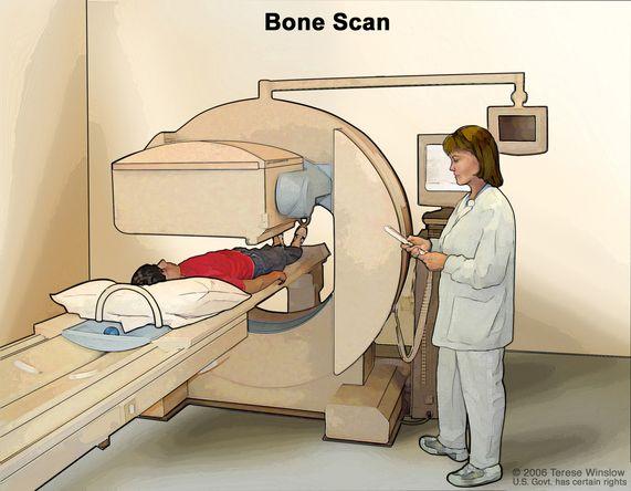 002-labextrade.com-bone-scan
