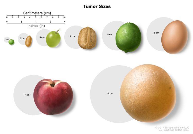 002-labextrade.com-tumor-sizes
