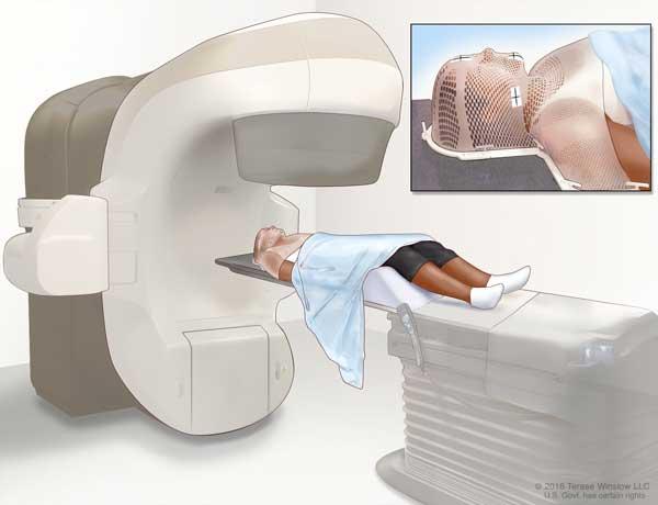 003-labextrade.com-hypopharyngeal-cancer6