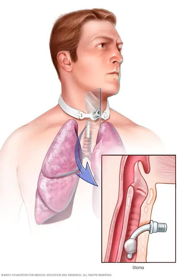 006-labextrade.com-Cordectomy