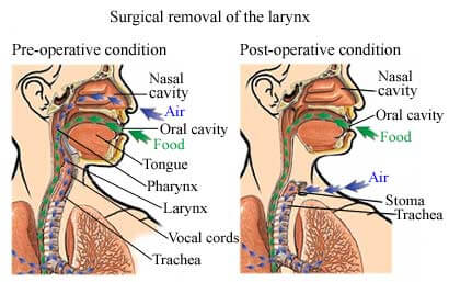 006-labextrade.com-Removal-of-the-throat-is-called-laryngectomy
