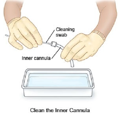 013-cleaning-of-inner-cannula