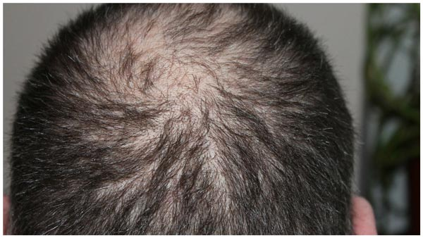 Laryngectomy - How To Handle Pain From Radiation Hair Loss