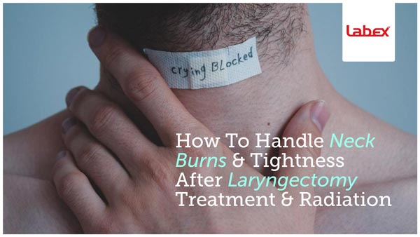 How To Handle Neck Burns & Tightness After Laryngectomy Treatment & Radiation